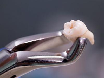 nhổ răng để niềng